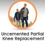 Uncemented partial knee replacement - Edwin P. Su, MD - Orthopaedic Surgeon