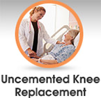 Uncemented Knee replacement - Edwin P. Su, MD - Orthopaedic Surgeon
