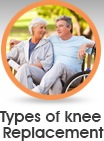 Types of Knee Replacement - Edwin P. Su, MD - Orthopaedic Surgeon